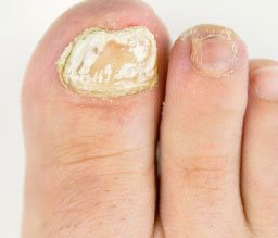 Nail distorded in shape may be a sign of a nail fungal infection