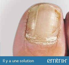 Ongle terne, sans lustre ni brillance. Il y a une solution : Emtrix