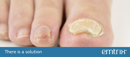 Thickened nail. There is a solution: Emtrix
